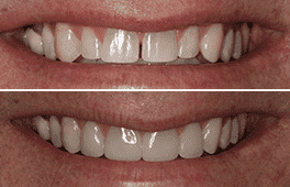 Before and After Dental Centennial Colorado