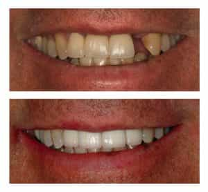 before and after dental work Centennial Colorado