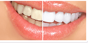 before and after teeth whitening Centennial Colorado