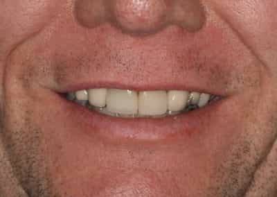 After Fractured Tooth Fixed Centennial Colorado