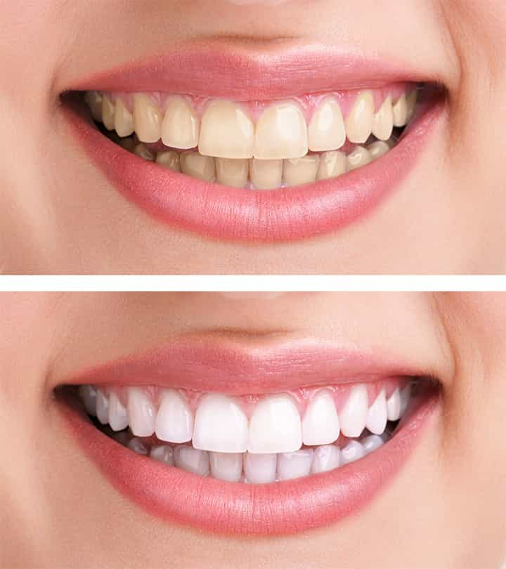 Before & After Teeth Whitening Centennial CO
