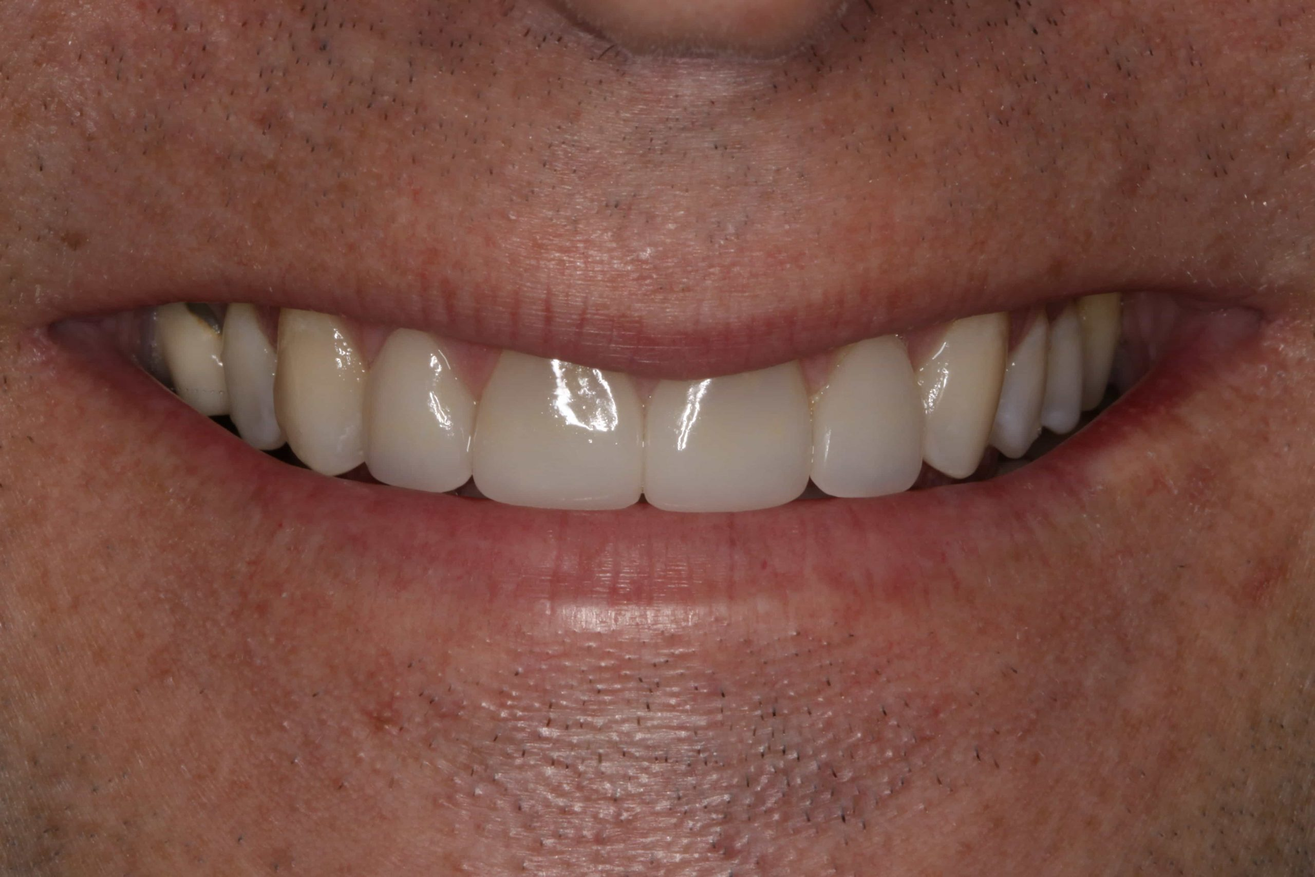 Before & After Same Day Veneers Centennial CO