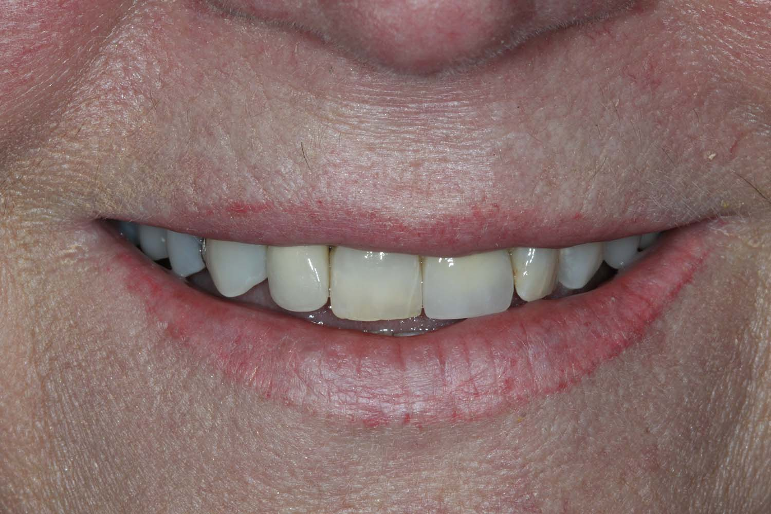 Before & After Fractured Teeth Centennial CO